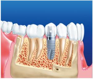 зъбен имплант на мястото на корена - картинка