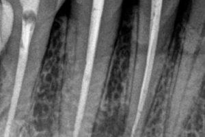 сегменти 2 зъб