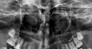 синуси рентген