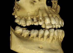 3д рентген челюст снимка