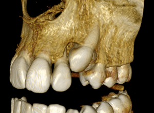 близка снимка 3д зъби челюст